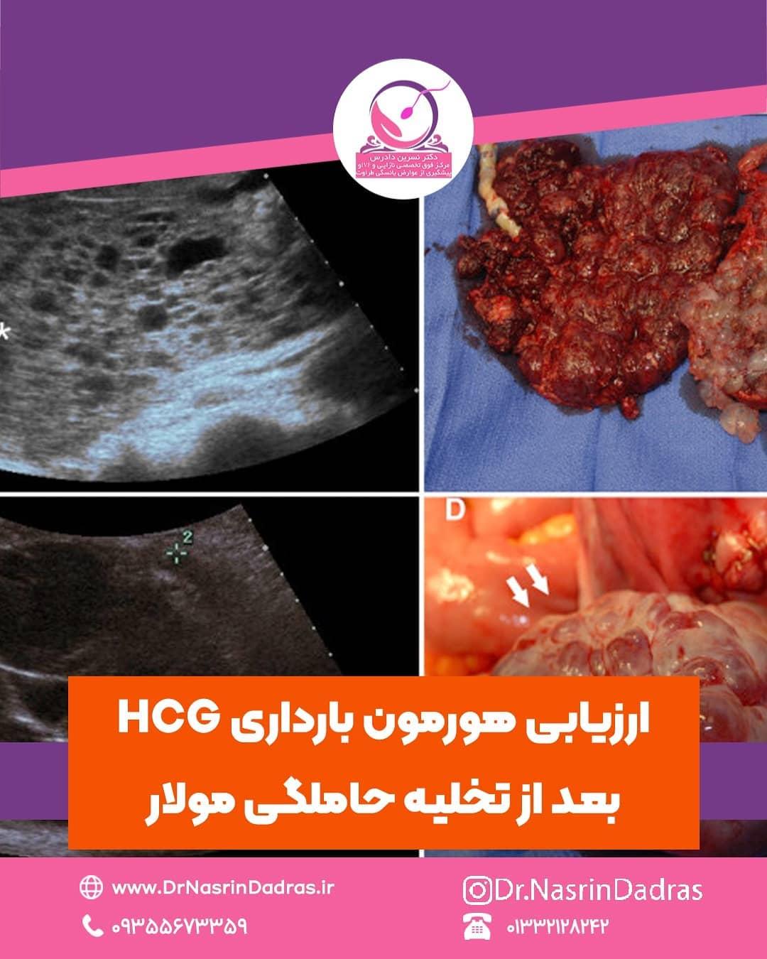ارزیابی هورمون بارداری HCG بعد از تخلیه حاملگی مولار
