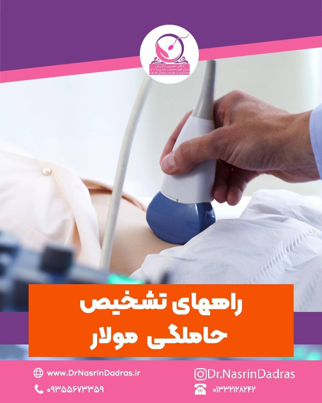 تشخیص حاملگی مولار