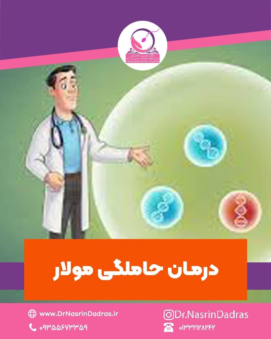 درمان حاملگی مولار