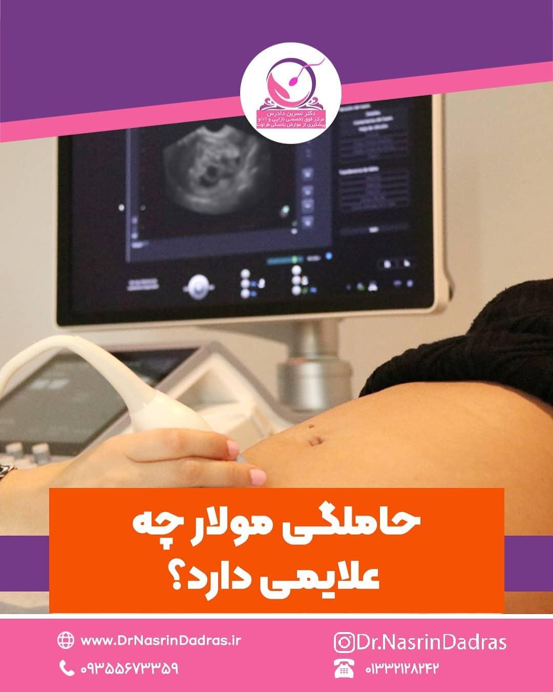 علایم حاملگی مولار